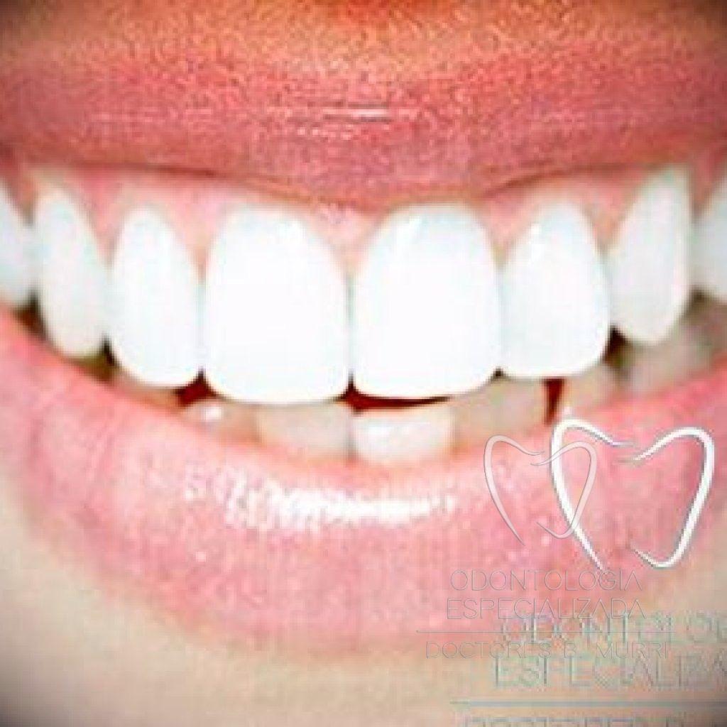 cepillo dientes manual eléctrico