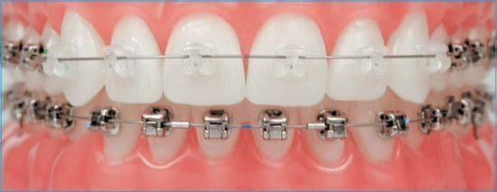 ortodoncia en Torremolinos