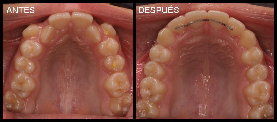 antes después odontología