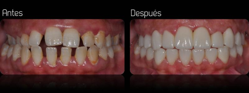 carillas dentales 1
