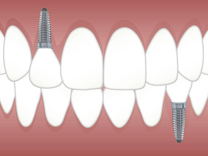 Cuidados a seguir despues de un implante dental