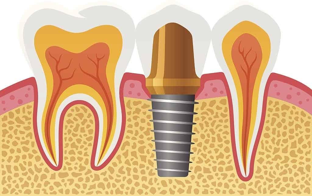 afloje tornillos de implantes dentales