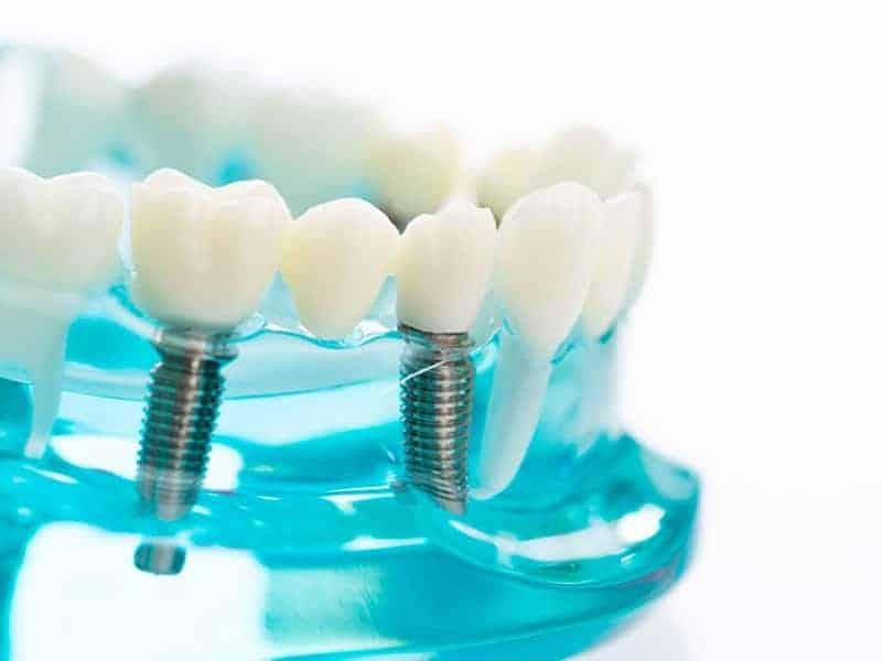 consejos cuidados después de implante dental