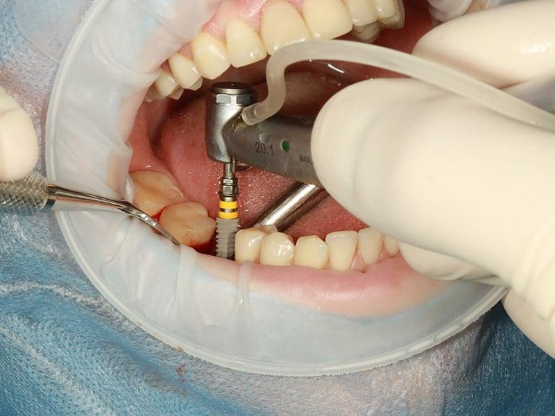 cuidado-implantes-dentales