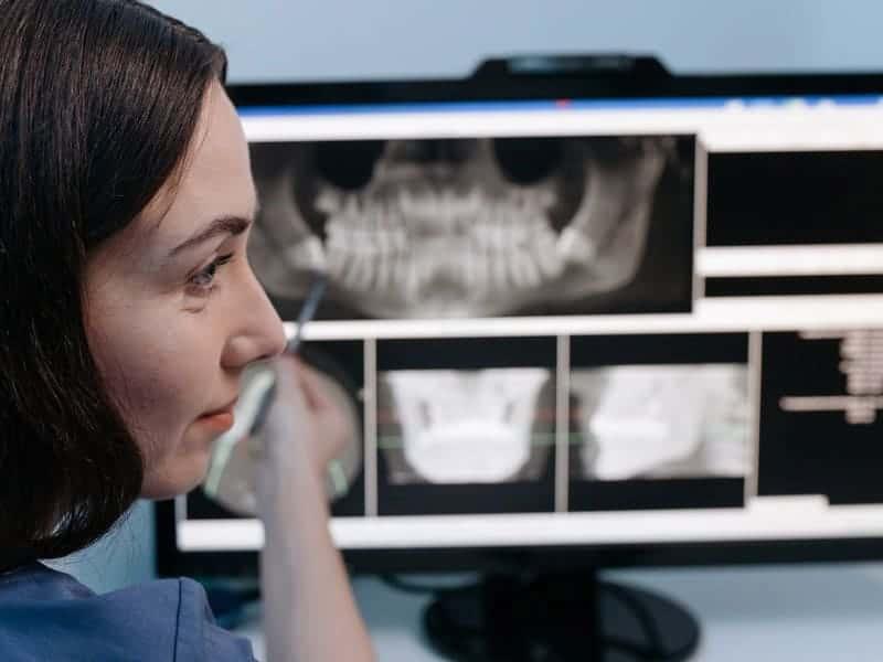 diagnóstico diente raíz fina