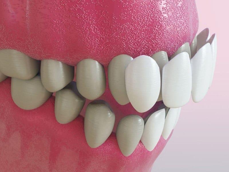 tipo de prótesis dental corona