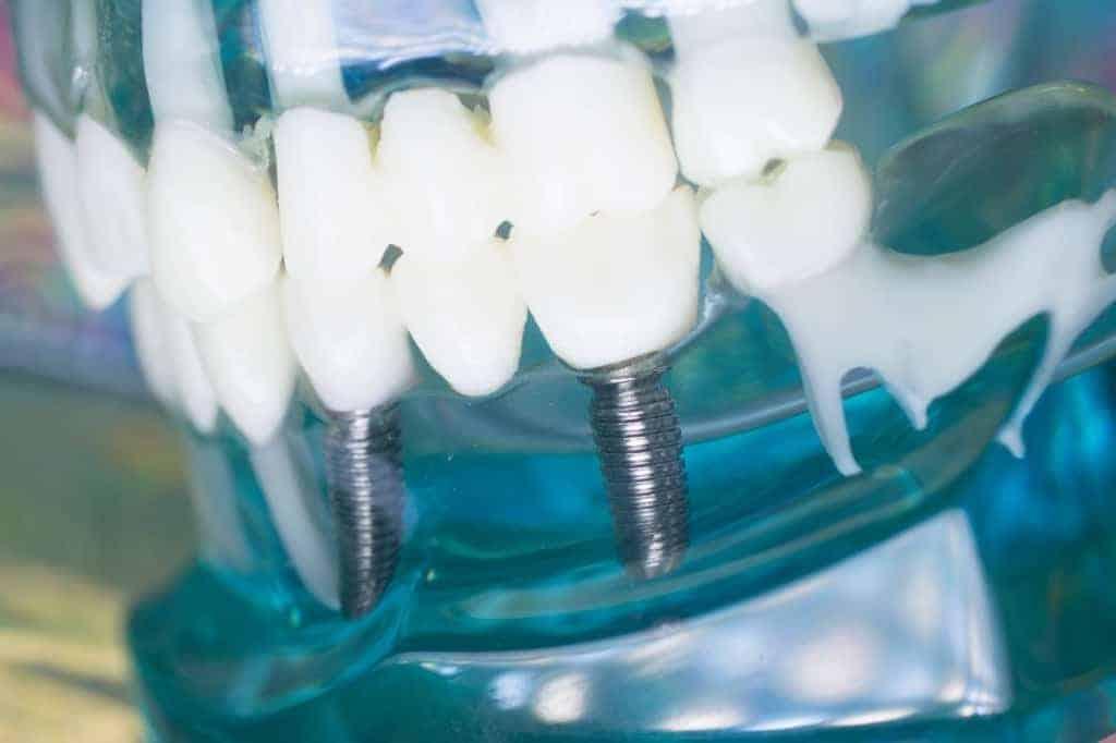 tornillos implantes dentales se aflojan