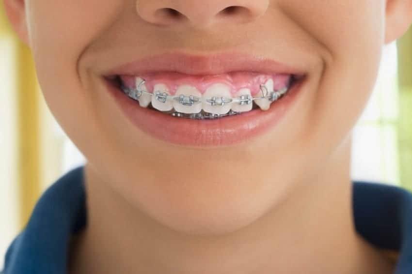 Qué es la cera dental
