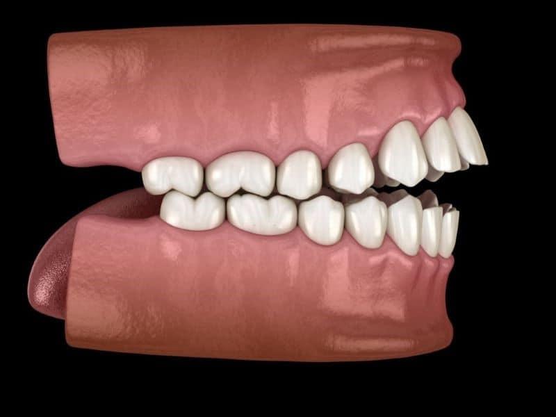 maloclusión dental